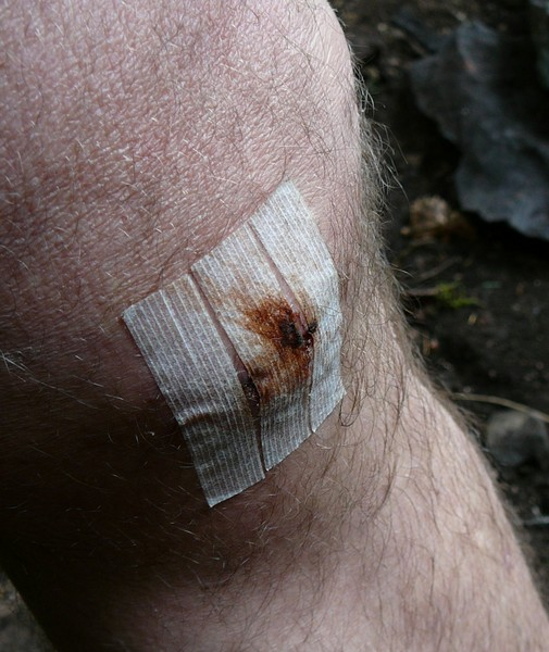 Bills_Knee_stitches_out_resized.jpg